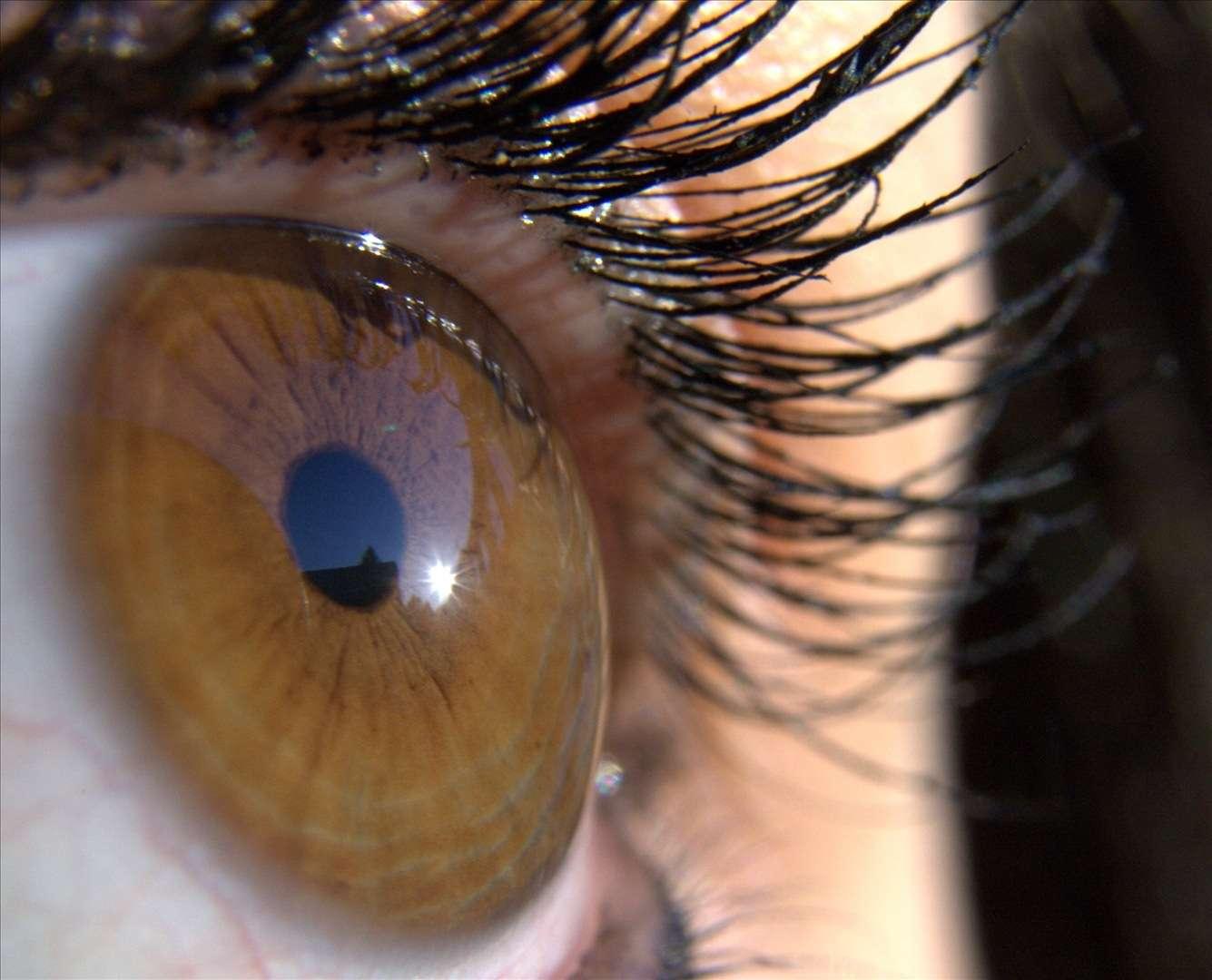decollement retine