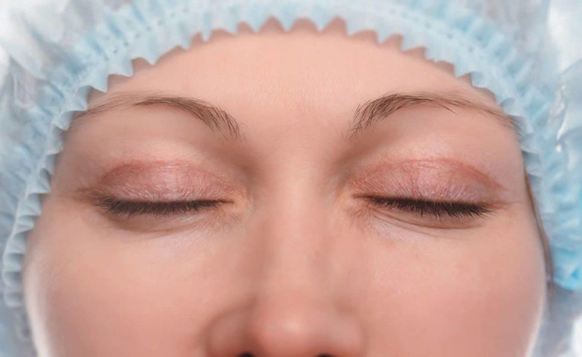 Faut-il opter pour la chirurgie au scalpel ou au laser ?