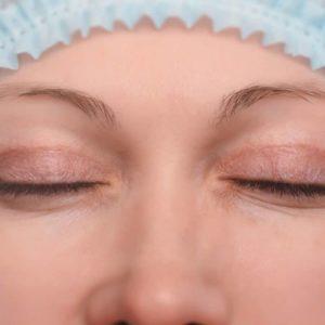 faut il opter pour chirurgie scalpel ou laser