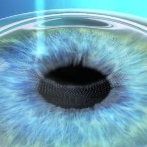 Quels-sont-les-prix-pour-une-chirurgie-refractive-de-l-oeil