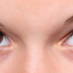 yeux-en-amande-pouvons-nous-agrandir-nos-yeux-chirurgie